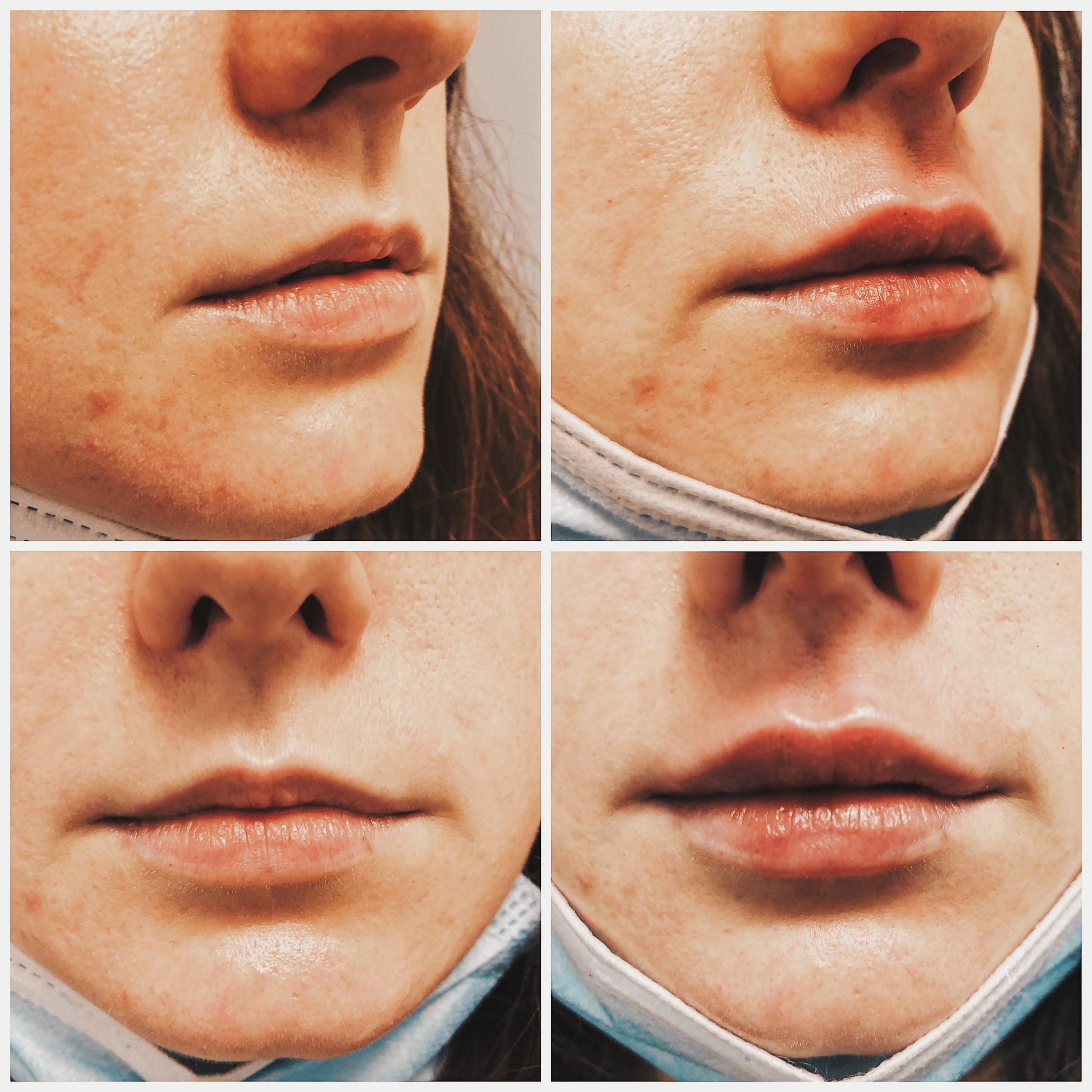 Aumento de labios con Protocolo Naturel Lips antes y después
