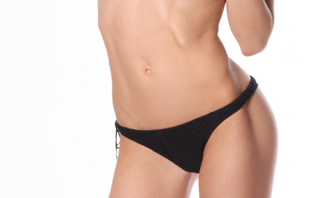 Las 10 dudas más frecuentes sobre la abdominoplastia